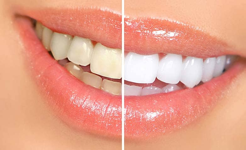Whiten Teeth In Photos